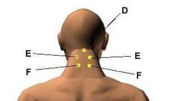 Акупрессурниє точки для зняття головного болю і мігрені