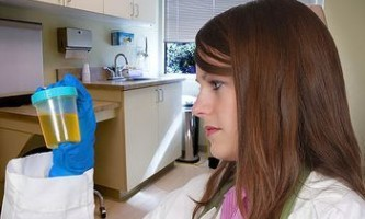 Аналіз сечі при циститі