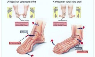 Біль у стопі при ходьбі: причини і лікування