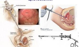 Цистоскопія сечового міхура у жінок