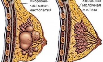 Дифузна мастопатія - причини, симптоми, діагностика, лікування