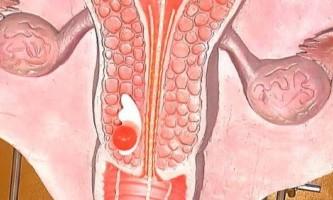 Дисплазія шийки матки: що це