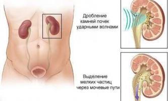 Дроблення каменів в нирках ультразвуком