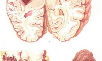 Гіпертонічна хвороба гіпертонія 1 2 3 стадії симптоми причини