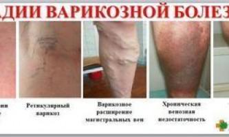 Як позбутися від варикозу на ногах