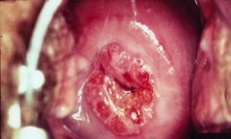 Як виглядає рак шийки матки