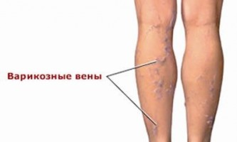 Як вилікувати варикоз на ногах: який засіб дає 100% результат?