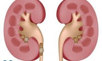 Камені в нирках: симптоми, ознаки, причини