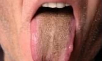 Коричневий наліт на язиці: причини і лікування у дорослих
