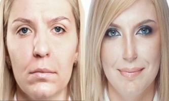 Корекція обличчя за допомогою макіяжу: основні напрямки корекції овалу обличчя (фото)