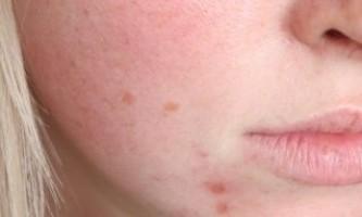 Шкіра «підвищеної емоційності»: догляд за чутливою шкірою.