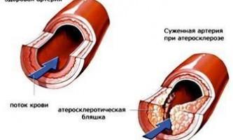 Лікування атеросклерозу народними методами