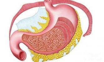 Лікування поверхневого гастриту