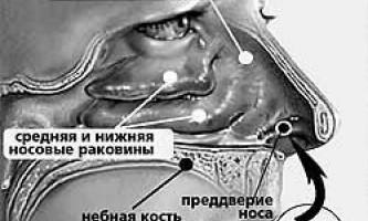 Лікування застуди будинку. Народні засоби проти нежиті, ангіни. Імуномодулятори та інгаляції при застуді. Як харчуватися при застуді. Жіночий сайт inmoment.ru