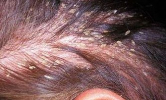 Лікування себорейного дерматиту народними засобами