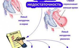 Ліки від серцевої недостатності