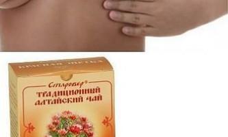 Мастопатія лікування травами