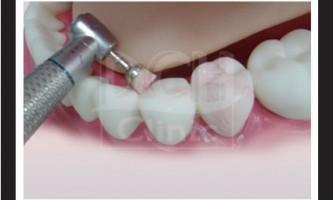 Механічна чистка зубів