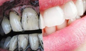 Чи можна чистити зуби активованим вугіллям