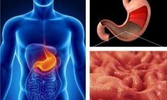 Народна медицина і лікування хвороб