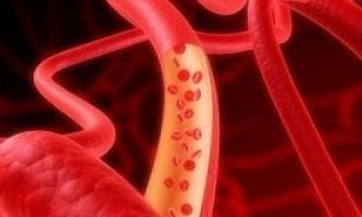 Очищення кровоносних судин