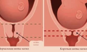 Опущення матки і вагітність