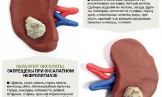 Від чого бувають камені в нирках