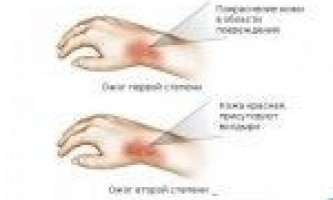Опік окропом: симптоми, лікування і перша допомога
