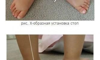 Плоско-вальгусна деформація стоп у дітей