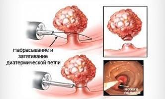 Поліпи в прямій кишці симптоми