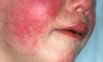 Ротавірус у дітей інкубаційний період