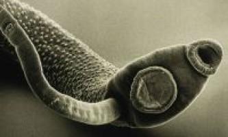Токсоплазмоз: симптоми, ознаки, діагностика, лікування, профілактика