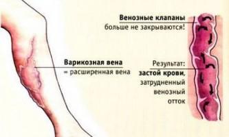 Відня на ногах при вагітності