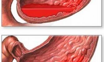 Внутрішня кровотеча кишечника