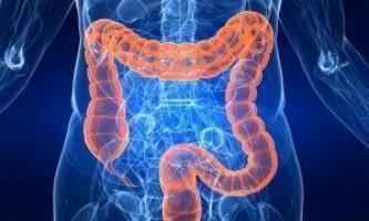Запалення кишечника симптоми і лікування, народні засоби, дієта