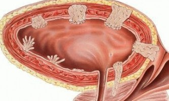 Захворювання сечового міхура