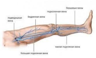 Захворювання вен нижніх кінцівок