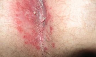 Печіння в задньому проході і прямій кишці: причини і лікування