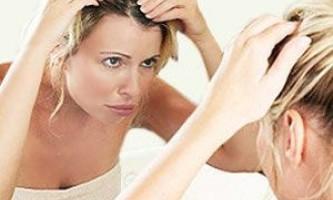 Сверблячка і лупа. Народні та медичні засоби від свербіння шкіри голови і лупи